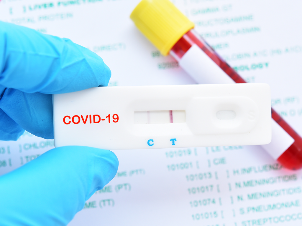 COVID-19-coronavirus-diagnostic-test-1024x768-1.png